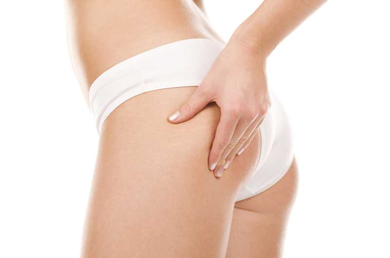 Liposuction Estetigi